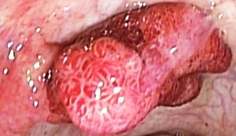 POLIPO O ADENOMAS SERRADOS DE COLON Y COLONOSCOPIAS  MAS POLIPECTOMIA ENDOSCOPICA EN LA PREVENCION DE CANCER DE COLON EN BOGOTA