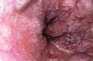 Cirrosis-historia-natural.-Endoscopia-Bogota.-Tel.-5203636-3806_large
