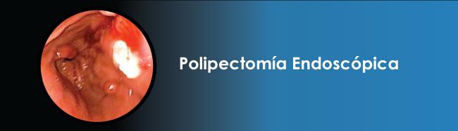 Polipectomía endoscópica