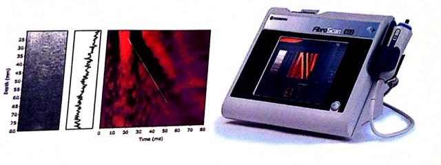 elastografia-2