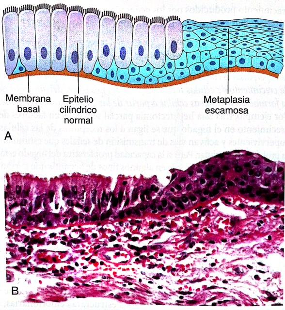 metaplasia intestinal gastrica
