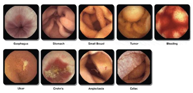 blog-img1-capsula-endoscopica-bogota
