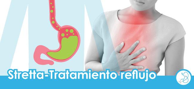 stretta tratamiento para el reflujo gastroesofágico