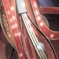 Terapia Stretta- STREETA tratamiento para reflujo gastroesofágico
