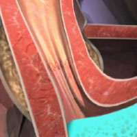 Post Stretta el músculo tratado previene el reflujo