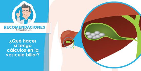 Qué hacer si tengo cálculos en la vesícula biliar ? | Serviendoscopias