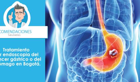 Tratamiento por endoscopia del cáncer gástrico o del estómago en Bogotá.