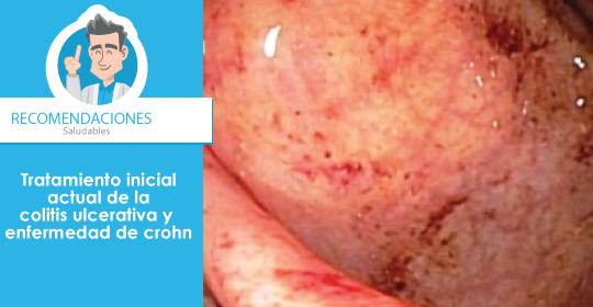 Tratamiento inicial actual de la colitis ulcerativa y enfermedad de crohn por Especialista gastroenterólogo en Bogotá